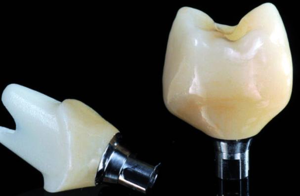 Bild Implantatkrone