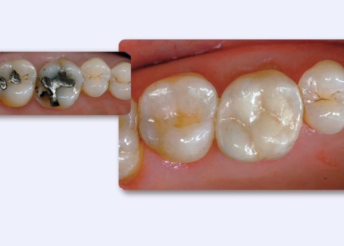 Dentistry by Dr St phane Cazier, France